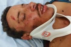 Dois homens foram socorridos depois de agressões sofridas durante  27ª Cavalgada de Ferros